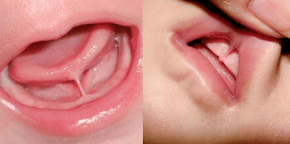 Tongue tie or Lip tie